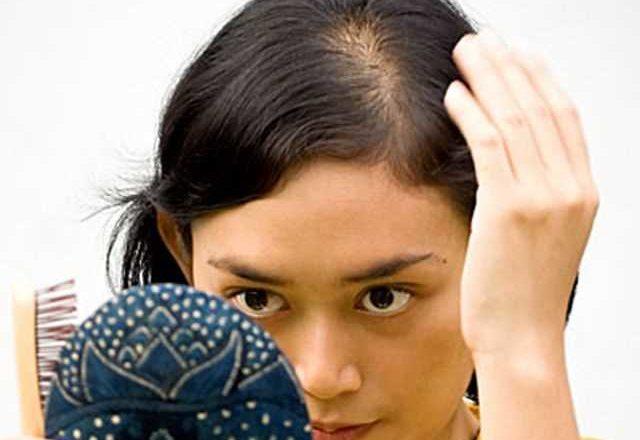 Losing Hair And Hair Loss Treatment